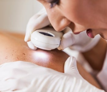 dermatologist examining patient for signs of skin cancer picture id514880133 1